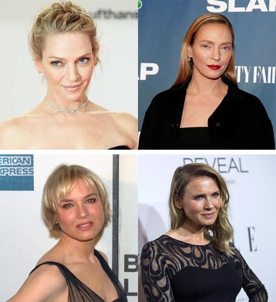 Celebrities y cirugía plástica